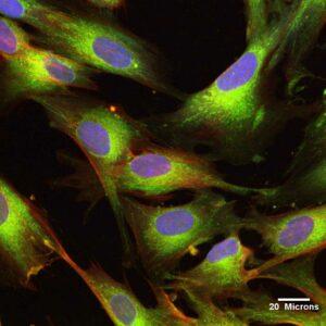臍帶間充質幹細胞(UCMSC)